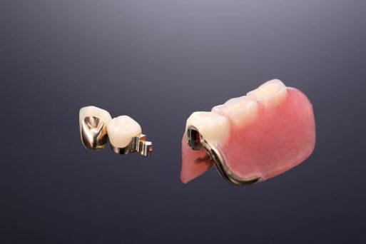 ダルボアタッチメント義歯