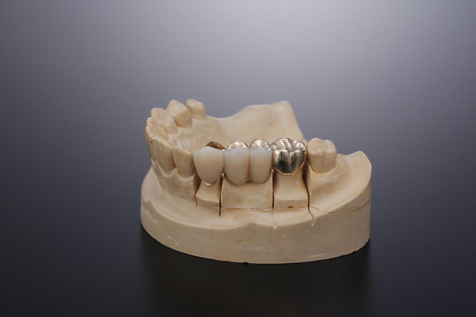コーヌスクローネテレスコープ義歯